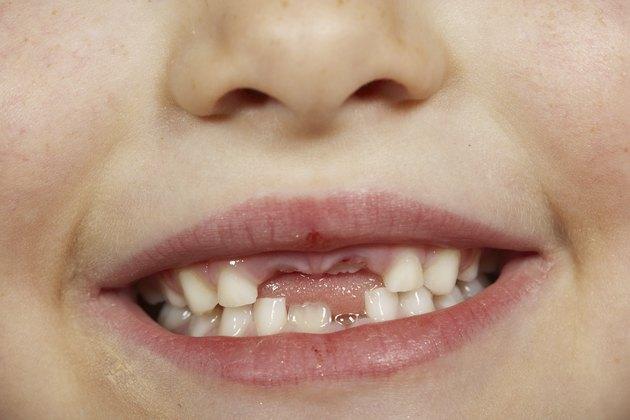 في أي عمر يتوقف الأطفال عن الإيمان بجنية الأسنان