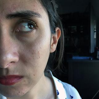 Mandelic Acid Irritation(?) - The Acne Experiment