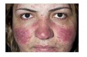 Pimple 7