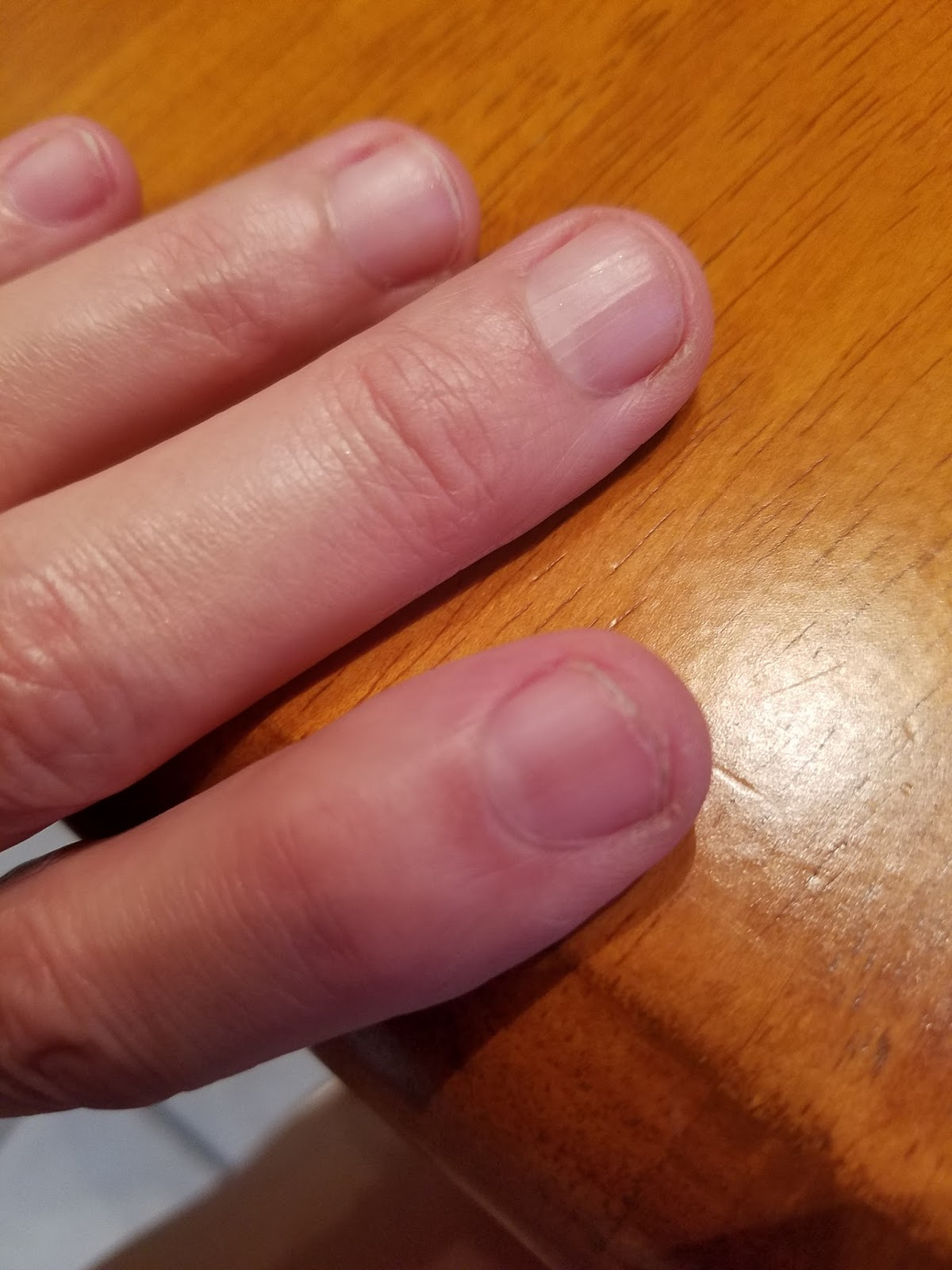 BLOGSGOTHEART: Do your fingernails peel and crack? B12 Deficiency Nails