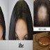 4 Proven And Effective Ways To Treat Hair Fall Without Spending Money