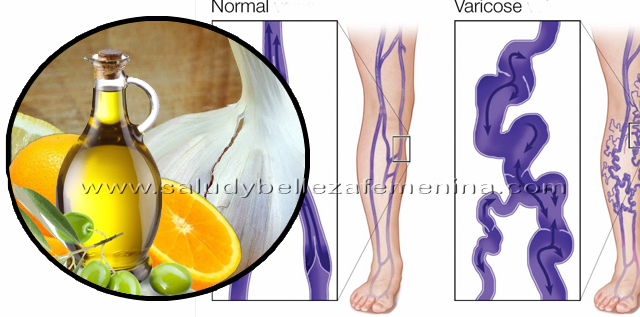 Cómo curar las venas varicosas con aceite de ajo, el ajo es  uno de los excelentes remedios naturales para las venas varicosas. El ajo puede romper las toxinas dañinas en los vasos sanguíneos y aumenta la circulación por todo el cuerpo.