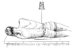 Radiographic positioning: Lumbar Positioning
