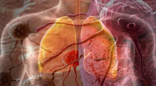 Kanker Paru Menjadi Kanker Paling Mematikan Dari Semua Jenis Kanker