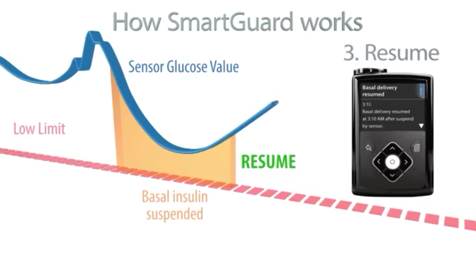 Medtronic Artificial Pancreas >> Medtronic MiniMed 640G and SmartGuard Technology | Ninjabetic