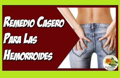 hemorroides-externas-trombosadas-cura-natural