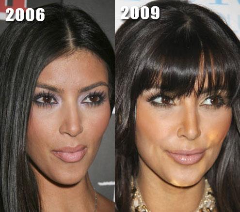 Mekuteku Kim Kardashian Before And After Surgery