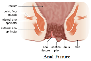 http://www.gastrosurgeoncochin.com/anal-fissures.html