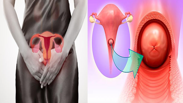 Cervical Disease: Warning Signs Of Cervical Disease! How to Know if You Have it