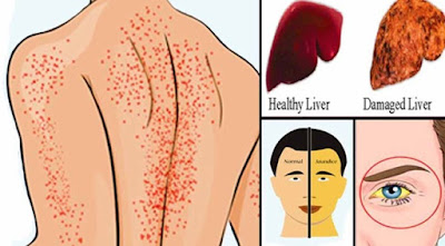 Indications of Liver harm: Read the Signals Your Body Sends [Health Detox]