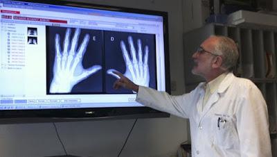 Tratamiento biológico artritis