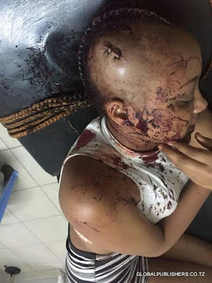 Tanzanian beauty queen left with broken head after horrific attack by robbers (photos)