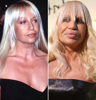 Shocking Celebrity Plastic Surgery Transformations Oh My
