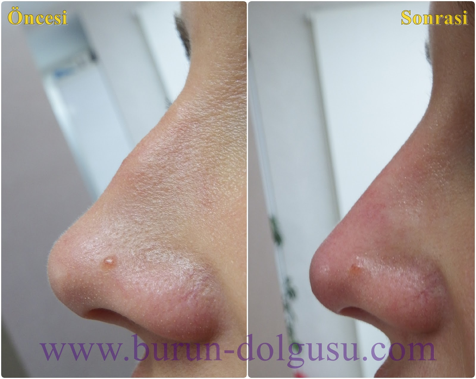Non-Surgical Nose Job With Filler in İstanbul