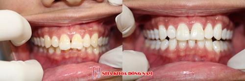 (Kết quả tẩy trắng răng tại Nha Khoa Đông Nam)