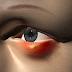 Ячмінь на оці – лікування народними засобами