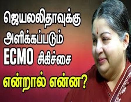 What is 'ECMO'…? – Dr. Vijayakumar, Cardiothoracic Surgeon to Thanthi Tv