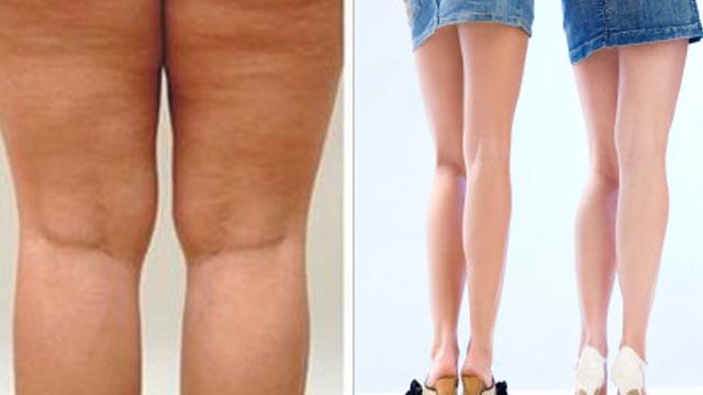 Bisakah tompel yang ada di kulit dihilangkan?