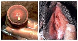 Kepala Penis Gatal Dan Bagian Lubangnya Memerah Sakit Saat Kencing