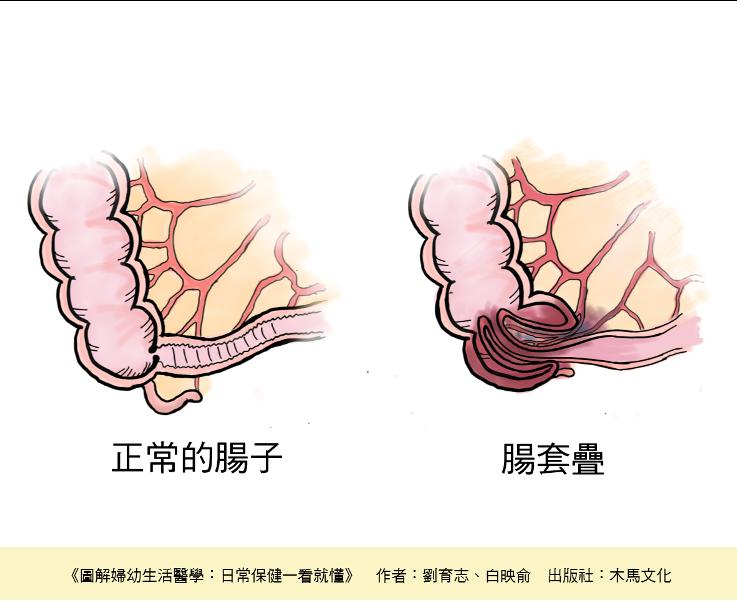 圖解腸套疊