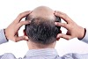 The Most Effective Method To Get Hair On Bald Head