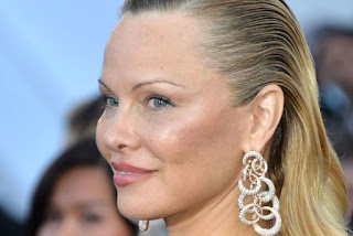 Former glamour model Pamela Anderson plastic surgery
