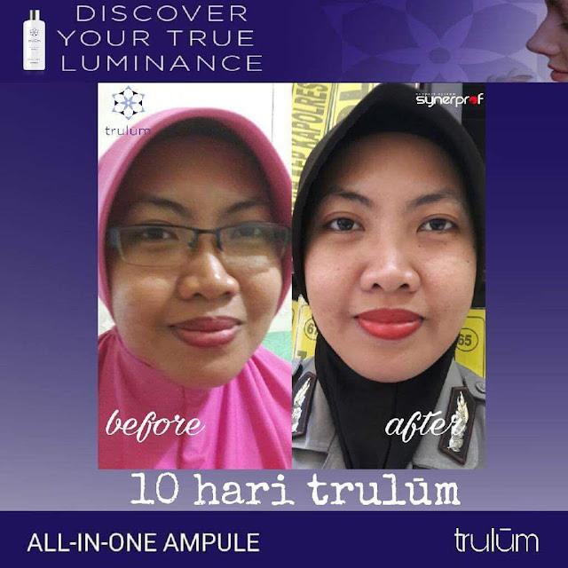 Makin Cantik atau Ganteng Tanpa Harus Ke Dokter Kecantikan di Bukit Tusam Aceh Tenggara