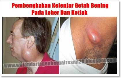 Obat Pembengkakan Kelenjar Getah Bening di Leher dan Ketiak yg TERBUKTI Manjur!!
