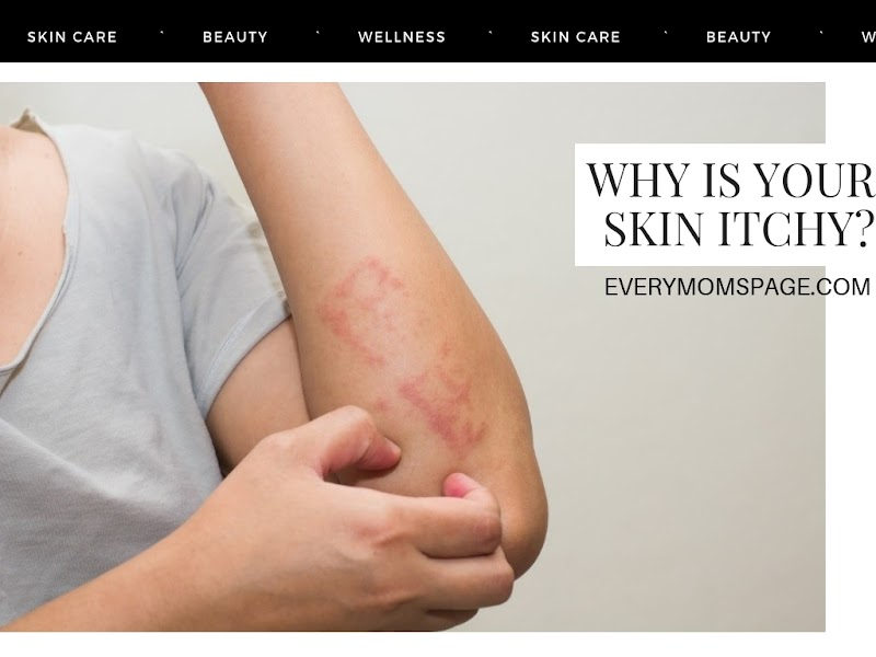 Why Is Your Skin Itchy?