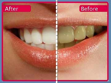 Health And Beauty Tips How To Whiten Teeth With Baking Soda And Lemon Paste