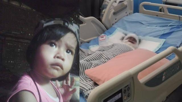 Anak Satu Tahun Masuk Dalam Kuali Panas, Kondisinya Miris, Orangtua Hanya Minta Bantuan Doa Saat ini