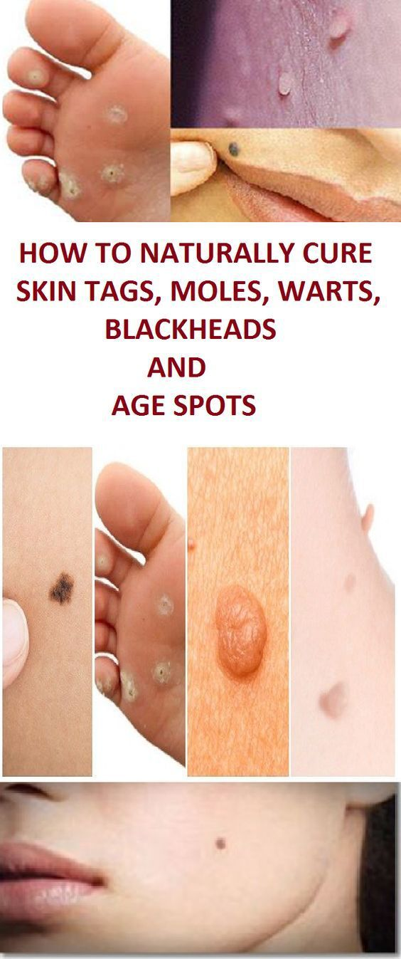 Natural Remedies To Remove Warts, Dark Spots, Blackheads And
