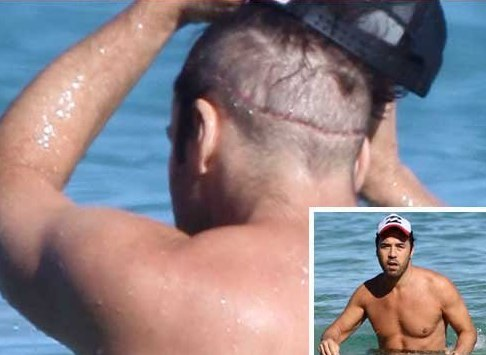 fue hair transplant and restoration sydney melbourne brisbane fixing and repairing hair