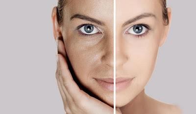 6 Cara Mengecilkan Pori Pori Wajah Secara Alami