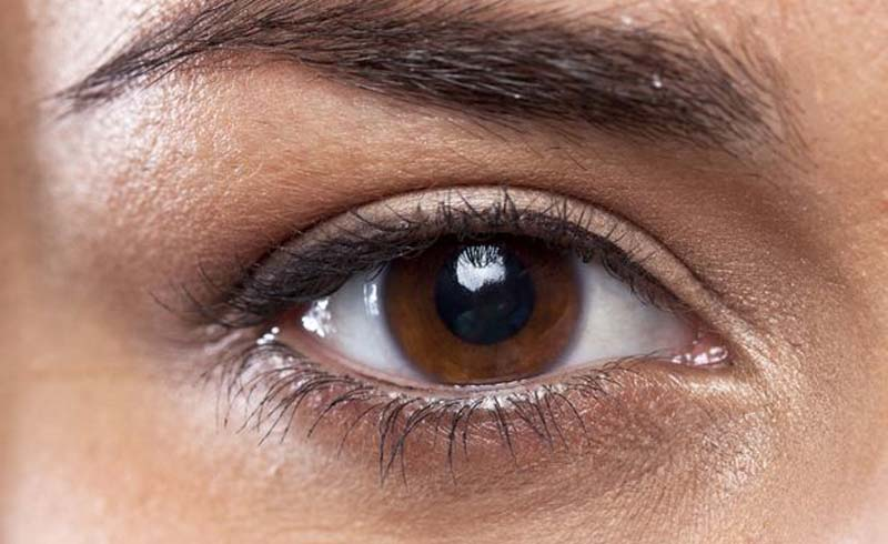 6 Natural Ways to Remove Dark Undereye Circles