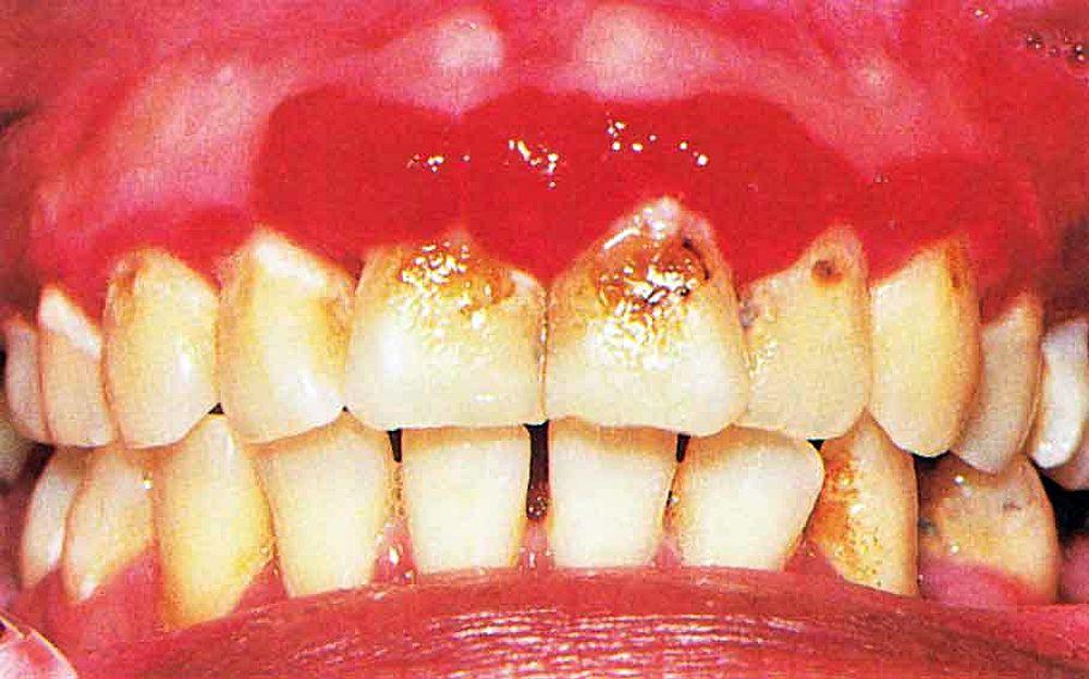 Diabetic Mouth