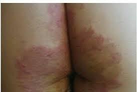 obat alami untuk mengatasi eksim pada pantat atau bokong