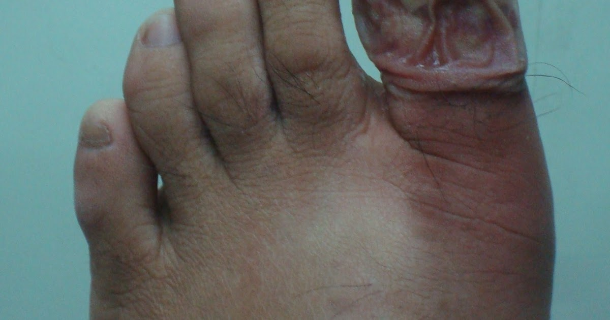 Infected toenail pictures - Awesome Nail