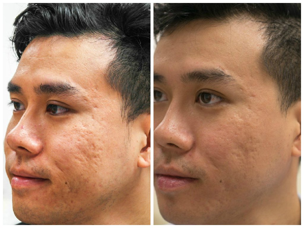 How Prp Injection Solves Facial Acne Scar In Selangor Amp Kl