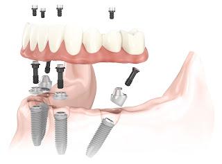cấy ghép răng implant có xảy ra biến chứng gì nguy hiểm không