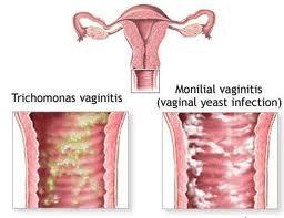 Image Mengapa kelamin mengeluarkan nanah