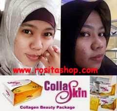 produk pemutih kulit wajah