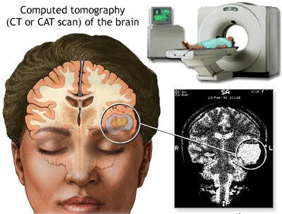 CT scan dapat mengesan punca sakit kepala