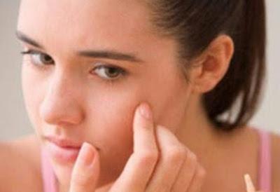Penyebab Jerawat Gatal Dan Cara Mengatasinya Secara Alami