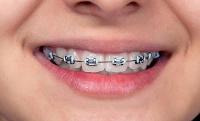 4 Bahaya Menggunakan Kawat Gigi