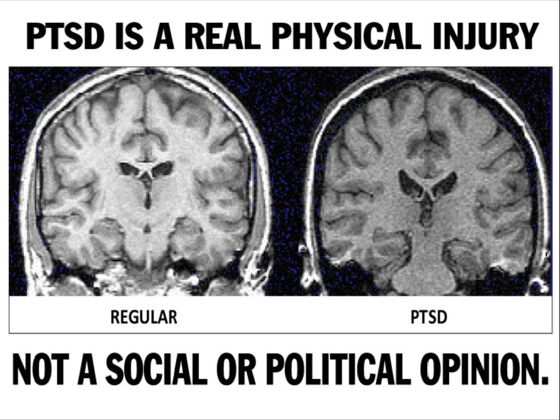 Image result for PTSD blogspot.com