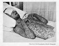 Afectado de viruela
