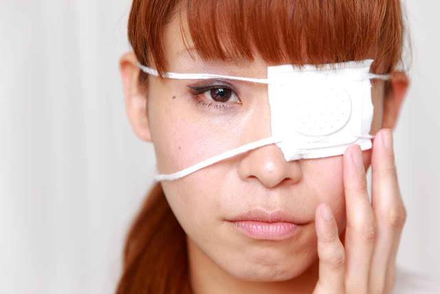 Cara Menghilangkan Xanthelasma / Endapan Lemak Di Kelopak Mata