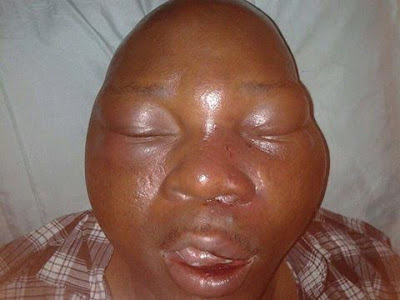 journalist beaten badagry lagos