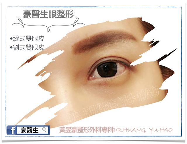 客製化雙眼皮形成術~擁有妳專屬的神采飛揚大眼睛